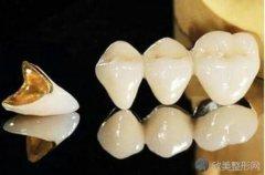 全瓷牙冠有哪些种?看看全瓷牙冠价格表就知道了