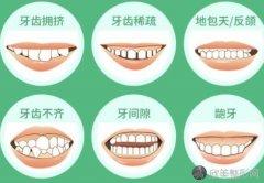 整牙不带牙套可以吗?具体什么方法?