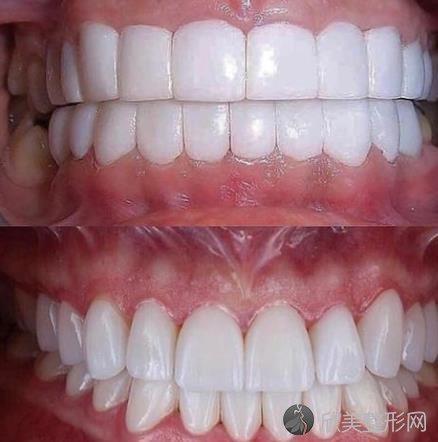 牙齿树脂贴面