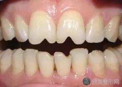 瓜子牙怎么修复?这两种修复方式你知道吗?附上最新价格收费