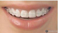 陶瓷半隐形牙套多少钱?2021年最新价格终于来咯!