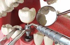 1000块的全瓷牙套好吗?2021年全瓷牙套价格表最新价格更新啦!