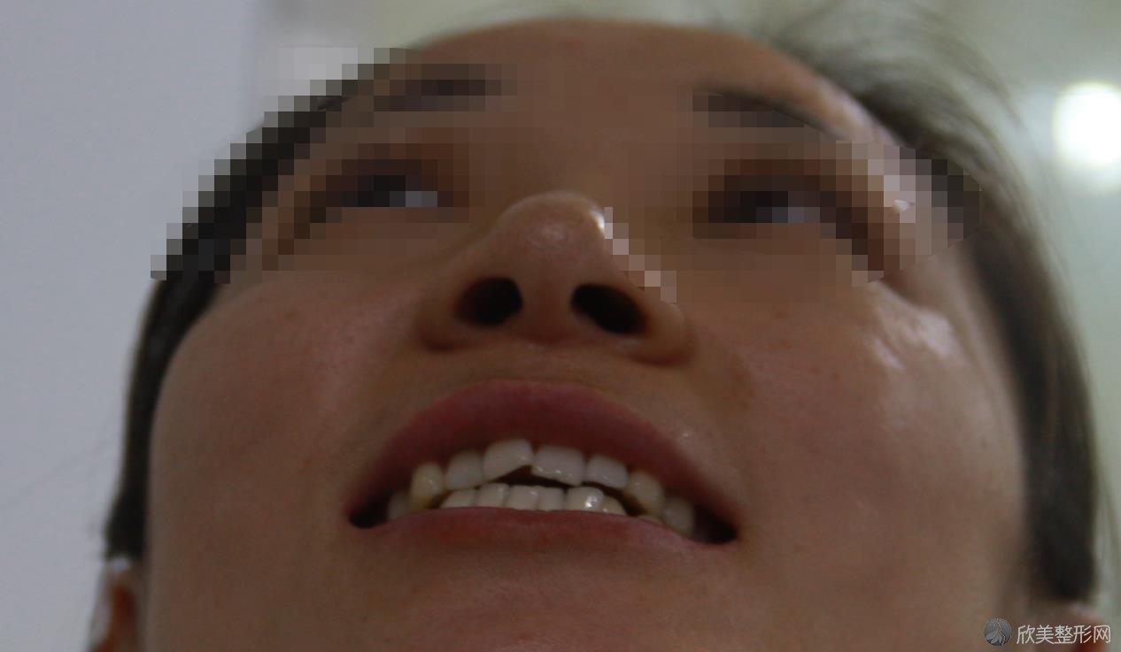 牙齿矫正之前