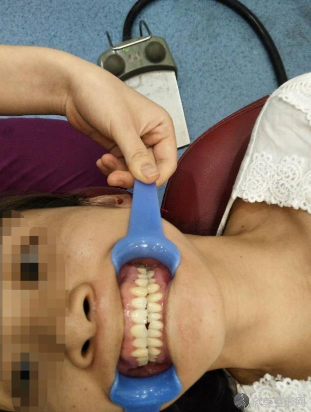 牙齿矫正之后