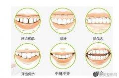 牙槽骨薄正畸风险有什么?选择最佳正畸时间牙齿矫正效果事半