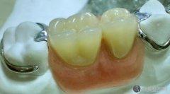 镶牙和种植牙的价格各是多少?2021年镶牙和种植牙价格大pk!