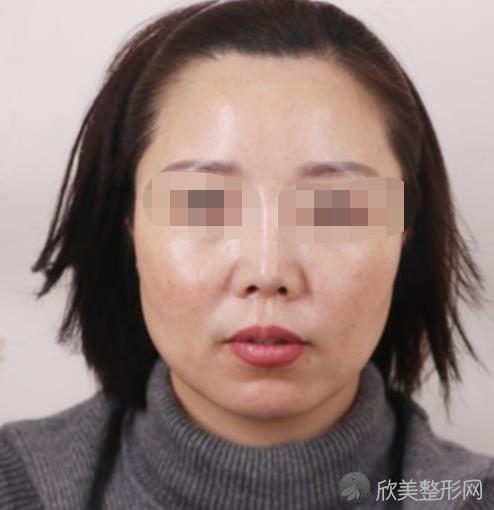 上海美莱医疗美容门诊部黄海医生做玻尿酸除皱