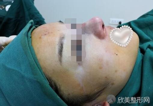 假体隆鼻手术过程中