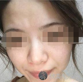 郭煜娜医生激光祛斑