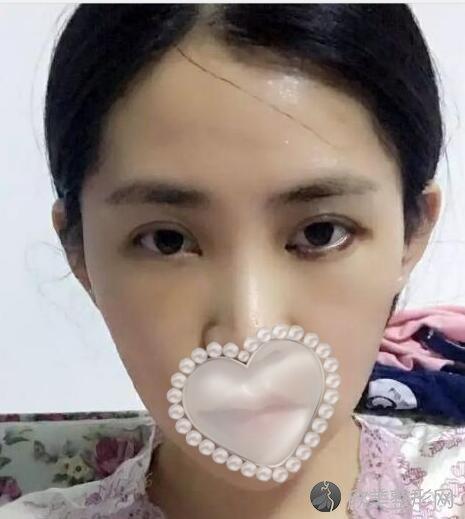 面部填充术后10天
