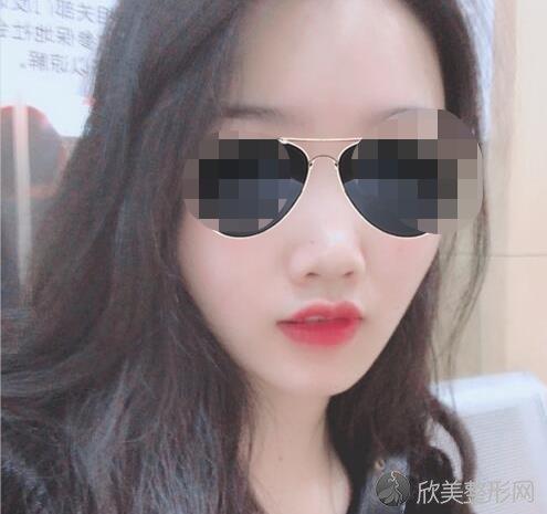 广州美莱医疗美容医院雷涛做隆鼻之前