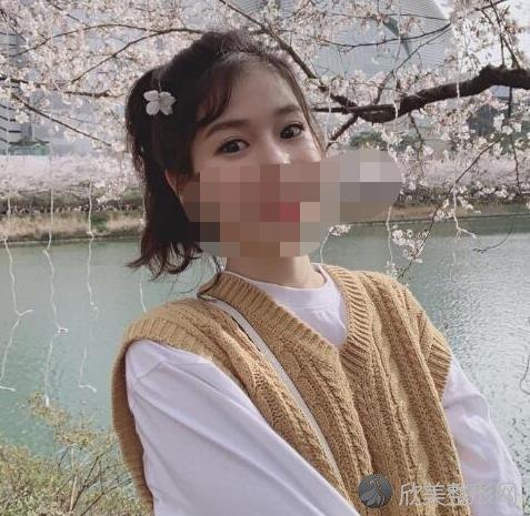 广州美莱医疗美容医院刘志坤做双眼皮恢复后