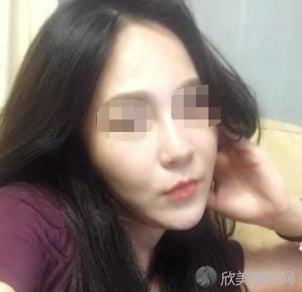 北京惠合嘉美医疗美容诊所刘蕊做法令纹去除