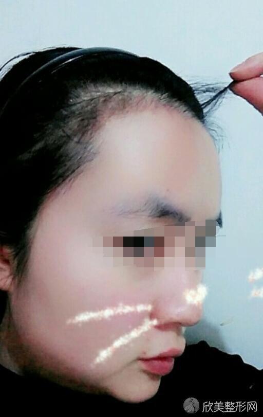 植发际线术后20天