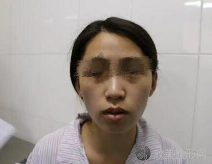 面部填充术前
