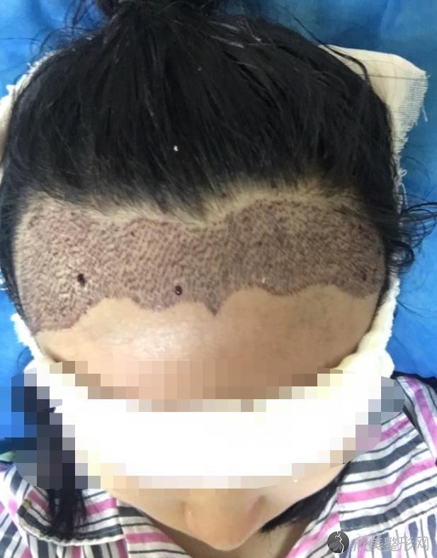 北京叶子整形美容医院的鲁礼新做发际线种植