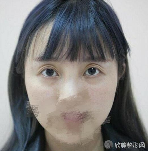 北京卓彦丽格医疗美容诊所的卢宏做双眼皮