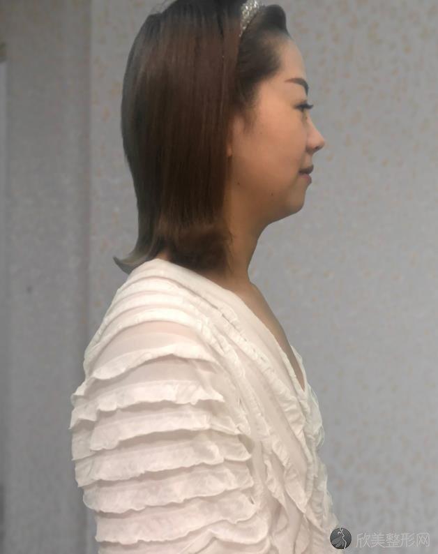 四川米兰柏羽医学美容医院康春雨做隆鼻