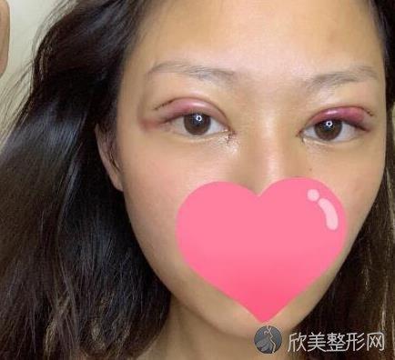 北京彤美整形医院桂行军做双眼皮之前