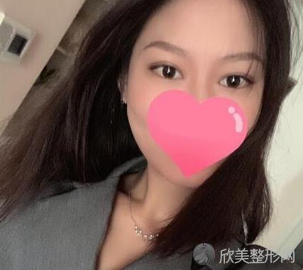北京彤美整形医院桂行军做双眼皮恢复后