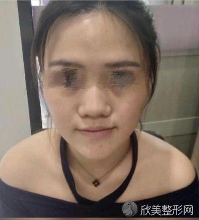 北京画美医院马群医生做假体隆鼻之前