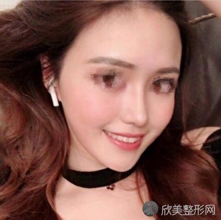 北京画美医院马群医生做假体隆鼻