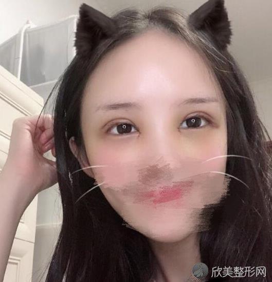 北京唯颜时代医疗美容诊所马永奇做双眼皮恢复