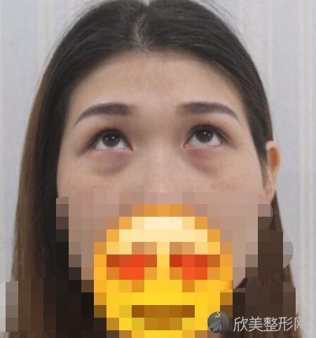 北京华悦府医疗美容诊所苗晓翾医生做激光去眼袋之前