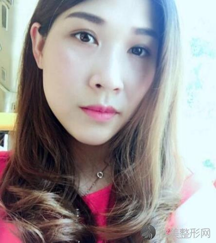 北京华悦府医疗美容诊所苗晓翾医生做激光去眼袋后