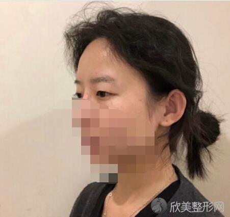 成都素美莫丽萍医生做双眼皮手术前