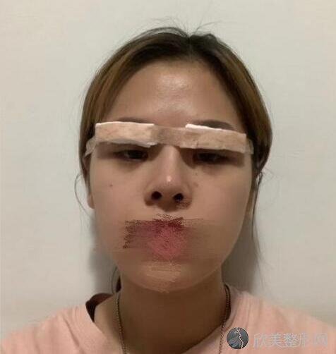 双眼皮修复术后2天