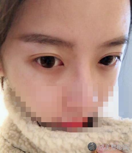 成都素美莫丽萍医生做双眼皮手术后