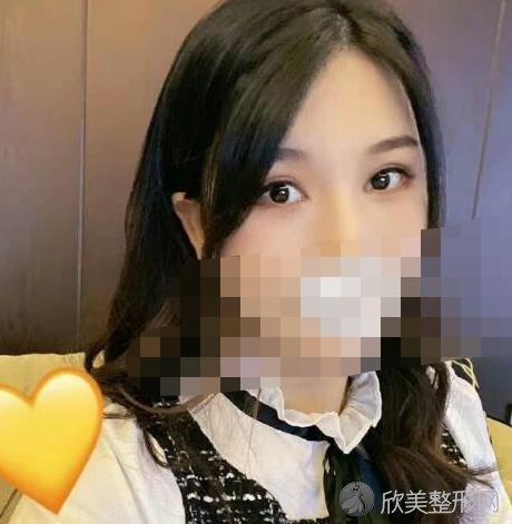 北京唯颜时代田珊山医生自体脂肪填充