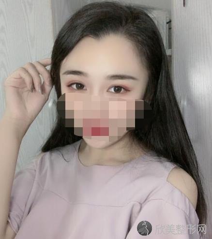 成都僮颜张东旭医生做双眼皮