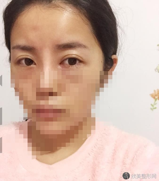 北京玉之光整形医院王明利医生做双眼皮