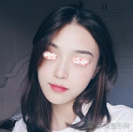北京煤医医疗美容医院王英勇做隆鼻后