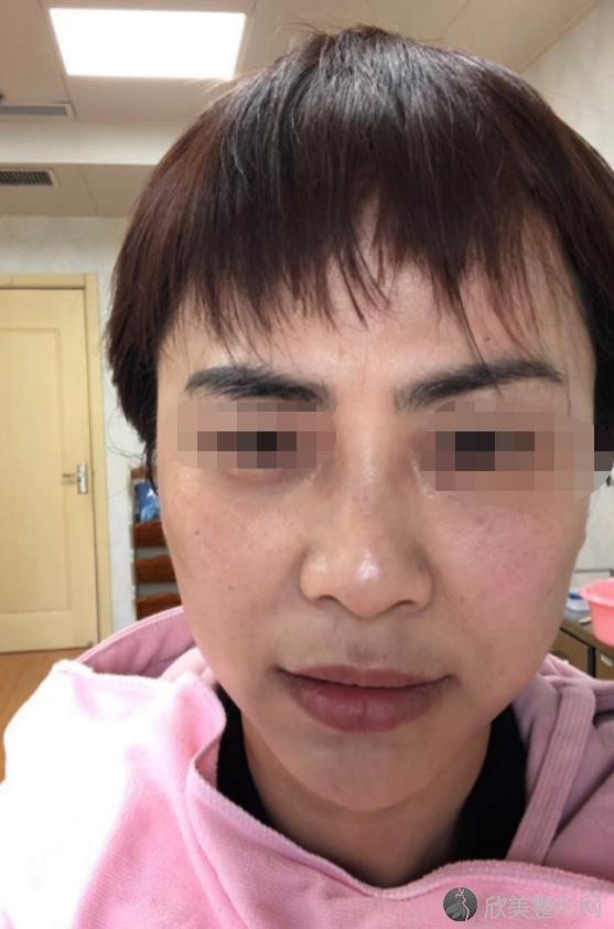 北京英煌医疗美容医院王勋做除皱