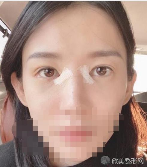 北京华韩医疗美容医院的王义山做双眼皮