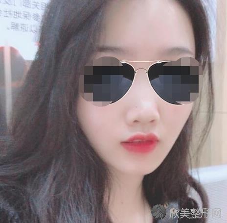 北京丰科星范医疗美容门诊部的王咏民做隆鼻之前
