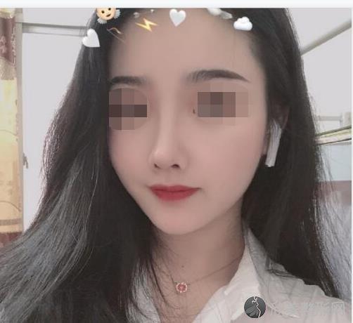 北京丰科星范医疗美容门诊部的王咏民做隆鼻