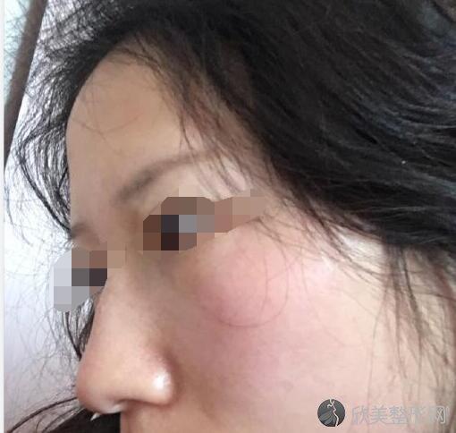 激光祛斑术后20天