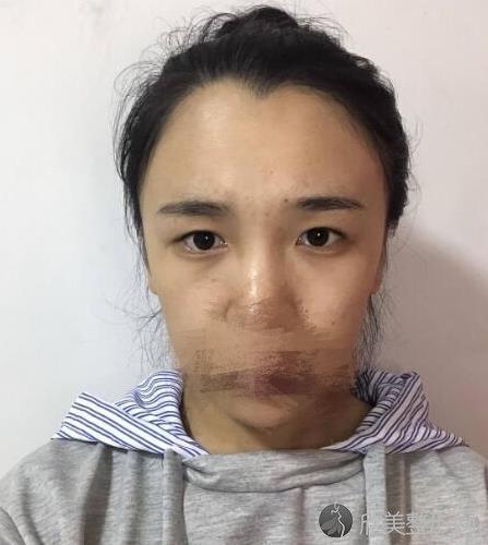 北京蜜邦夏毓琴医生做全切双眼皮