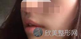 四川西婵萧庆昌医生唇腭裂修复手术