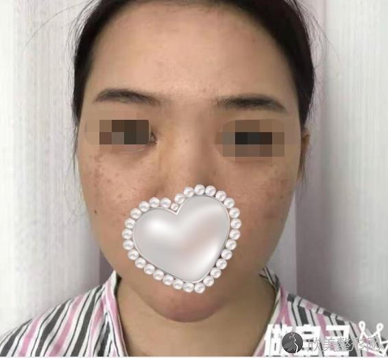 四川西婵整形美容医院李斌医生鼻综合之前