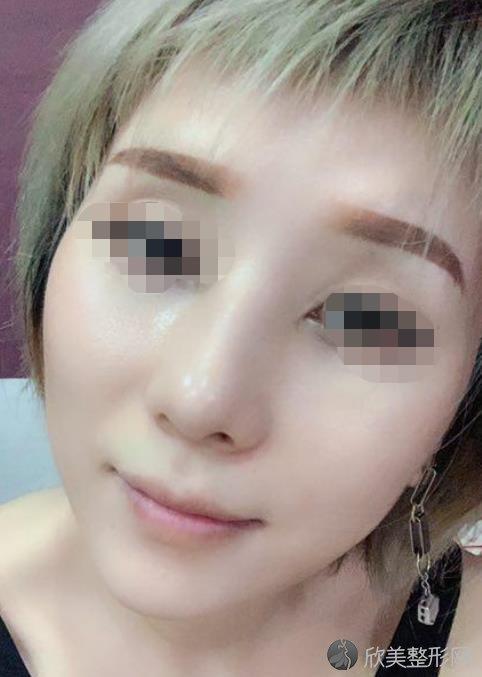 北京丽都医疗美容医院吴玉家医生做注射除皱