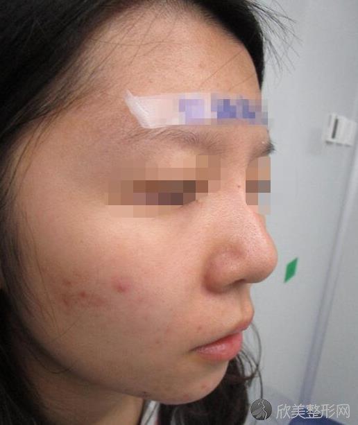北京炫美医疗美容诊所岳莉棡做隆鼻