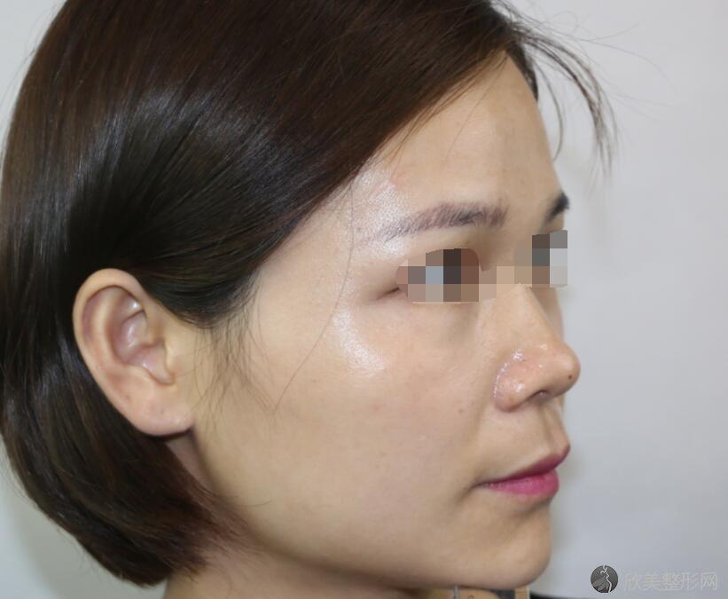 鼻综合术前