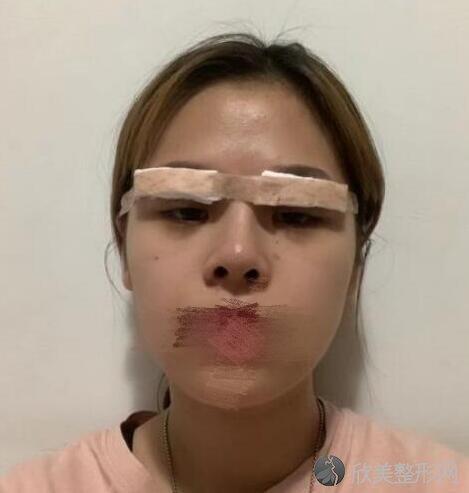 双眼皮术后5天