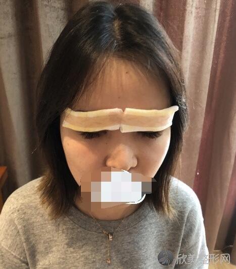 双眼皮术后2天