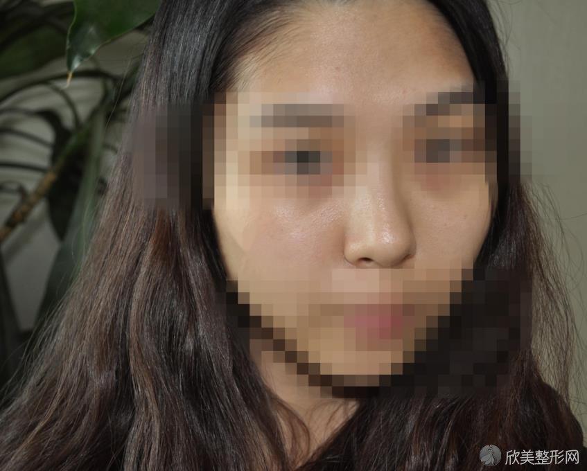 北京画美徐学东医生假体隆鼻之前